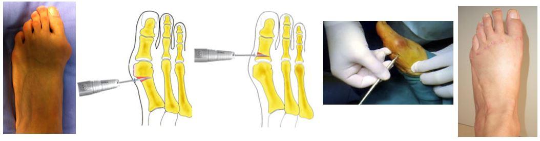 Chirurgia percutanea e mininvasiva del piede: Alluce valgo