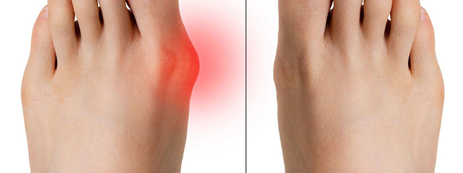 Chirurgia percutanea e mininvasiva del piede